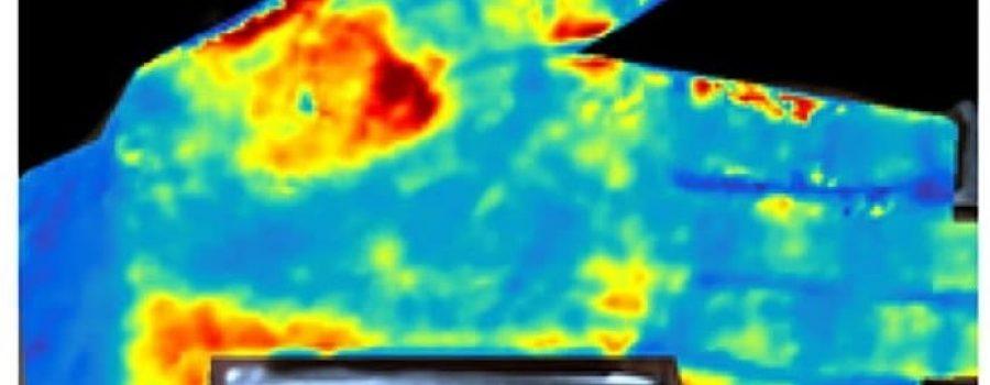Mapiranje krvotoka ispod kože u visokoj rezoluciji
