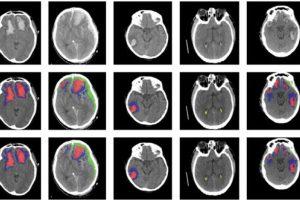 Novi algoritam vještačke inteligencije otkriva razne povrede mozga